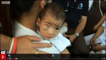 Agent Orange in Vietnam: chemical weapons used by USA have now caused 150,000 childbirth defects according to the Vietnamese Red Cross, photo by BBC i-player screen shot
