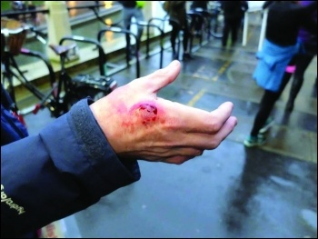 Socialist Party member Mike Luff shows the deep bite wound inflicted by a private security guard